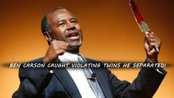 Ben Carson Caught Violating Twins He Separated